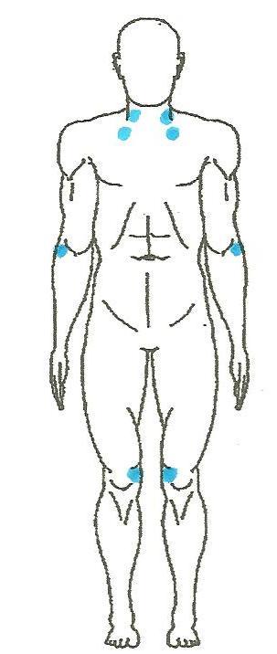 Casey Anthony  Fibromyalgia Pressure Points Diagram