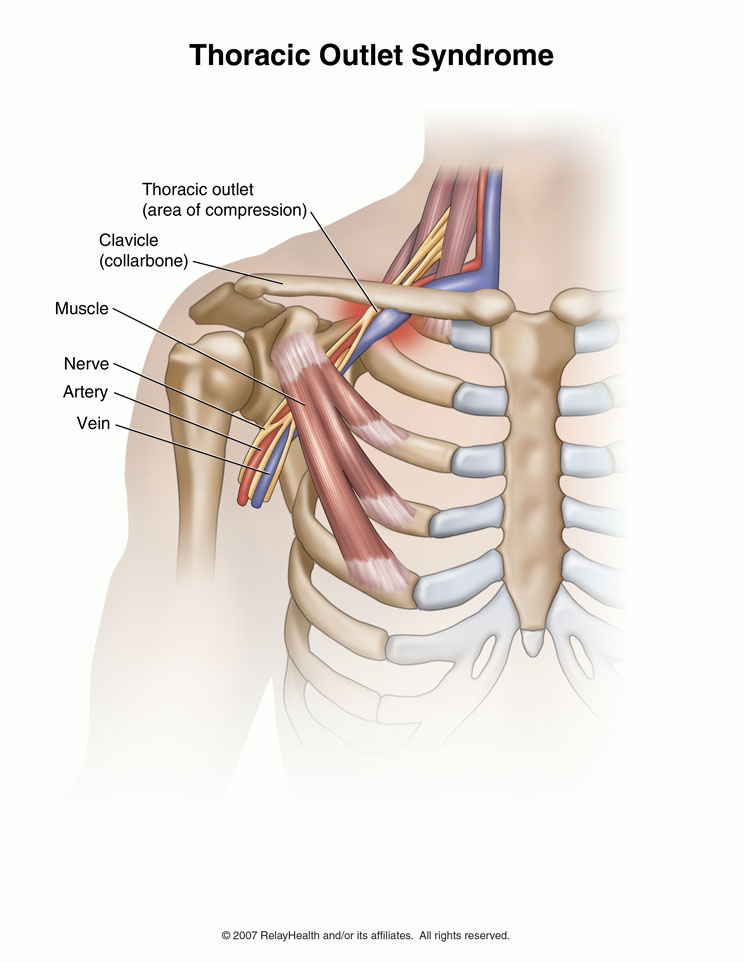 thoracic outlet syndrome - photo #12